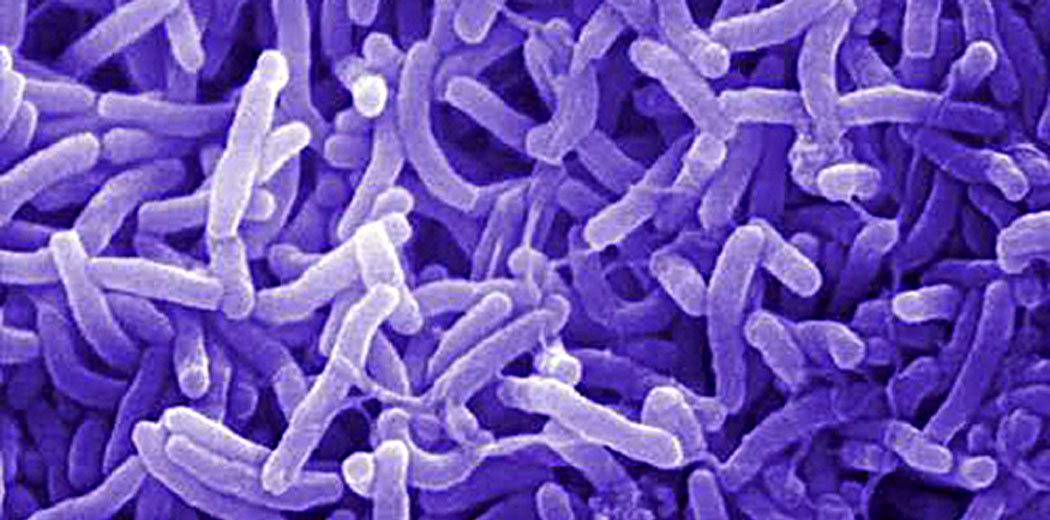 бактерии, вибриони на холера