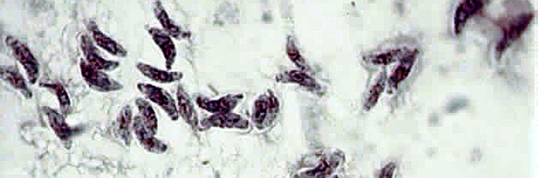 Токсоплазма гондии - едноклетъчни животни