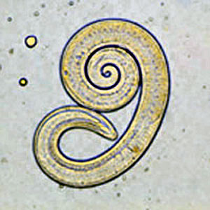 Спирална трихина, Trichinella spiralis